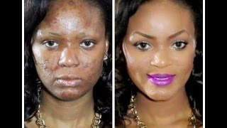 6 Makeup Tutorials For Acne Coverage That Will Actually Help