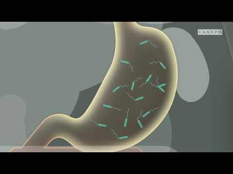 Cum să vindecăm viermi omul