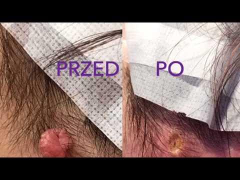 Operacją szczegółowo powiększenie prącia