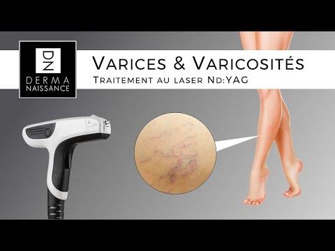 Traitement des varices et des varicosités avec le Laser Nd:YAG de Viora