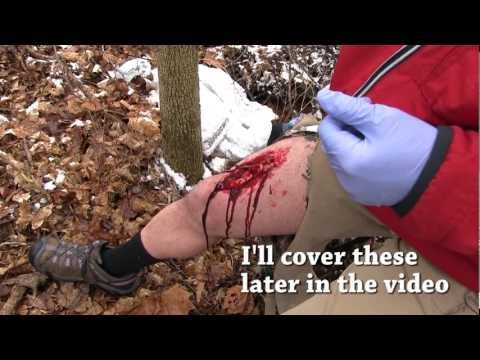 Video Field Wound Care - Tips for surviving a severe wounds away from medical care
