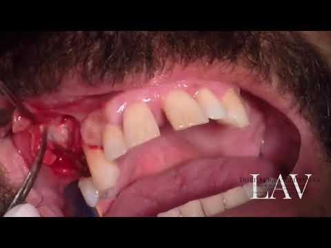 Ginnastica per il trattamento di hip parte 1