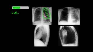 Lobar Atelectasis on Frontal and Lateral Chest X-Rays [UndergroundMed]