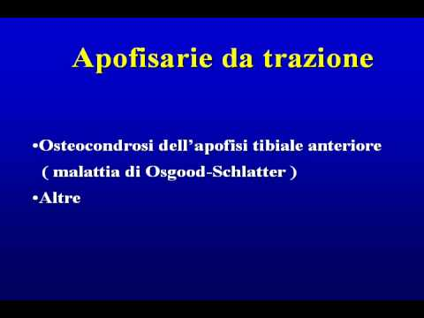 Osteocondrosi fa male costantemente