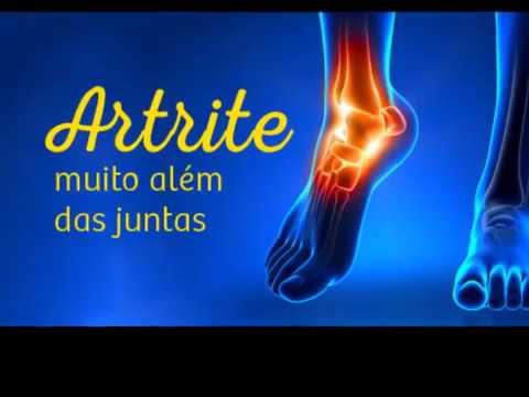 Picioare umflate remediu