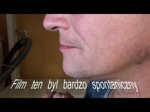 Valgus krzywizny nóżek przyczyn