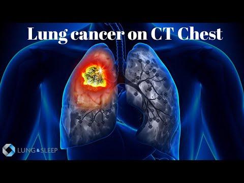 Cancer mediastinal simptome