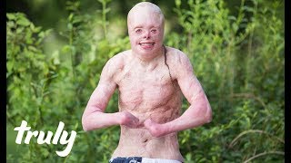 My Body With 95% Burns | TRULY