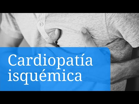 La glucosamina y condroitina para la diabetes