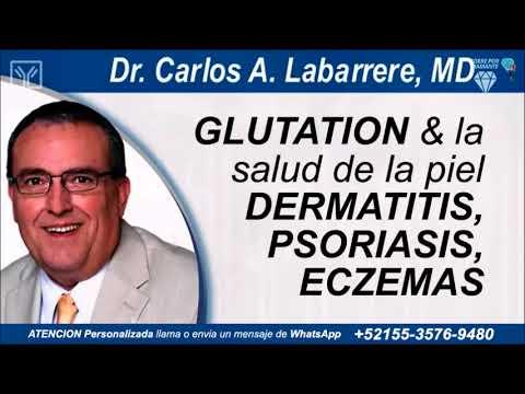 La psoriasis el tratamiento zirtek