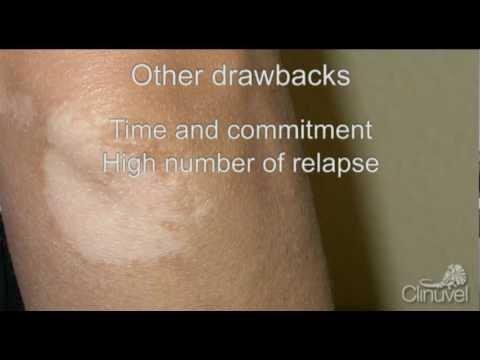 Applicazione a eczema