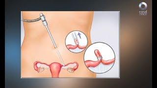 Diálogos en confianza (Salud) - Métodos anticonceptivos y salud sexual