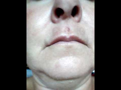 How does a Plexr treatment heal_day 2_original medicated foundation