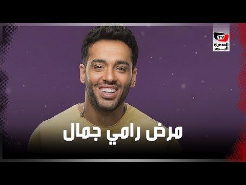 رامي جمال يعلن إصابته بالبهاق.. وعاصفة من التفاعل والتضامن