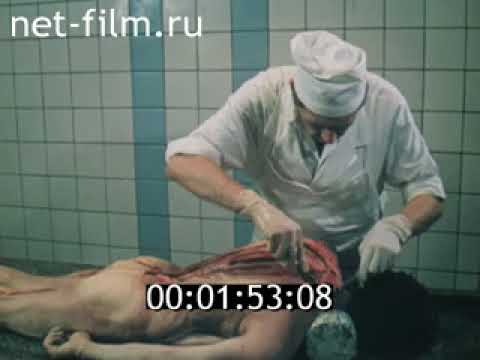 Повешенный(16+) Судебно  медицинская экспертиза механической асфиксии (1990) для студентов медвузов