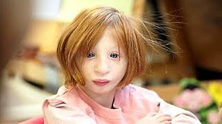 Mom Adopts A Girl That Nobody Wants. 19-Years Later, She Looks Totally Different