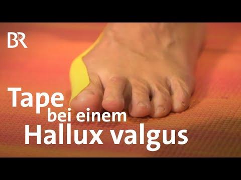 Jak przywrócić kości stóp