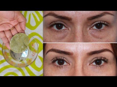 Injections malinis dark circles sa ilalim ng mata