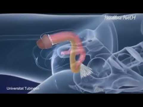 Apakah atau tidak untuk menjalani operasi untuk meningkatkan penis