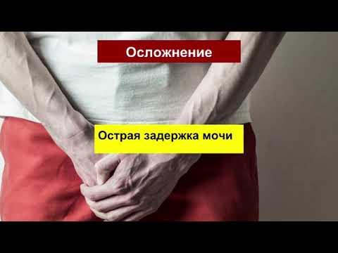 Хронический простатита лекарства