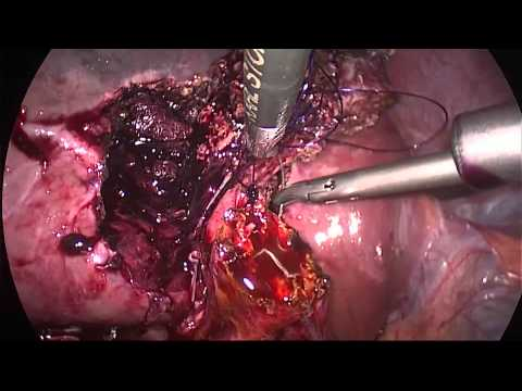 Fase 2 hipertensão risco 3 história médica