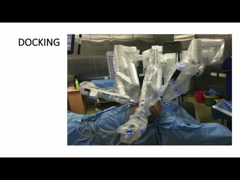 Robotic Transthoracic & Transperitoneal Esophagectomy on da Vinci X system