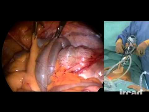 Meckel's Diverticulum: Segmental Small Bowel Resection Using Single Port Access