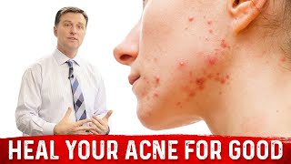 Heal Your Acne For GOOD!