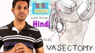 What is a Male Vasectomy?- Hindi