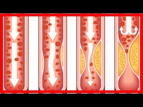 Die Varikose die Ulcen trophicum auf den Beinen