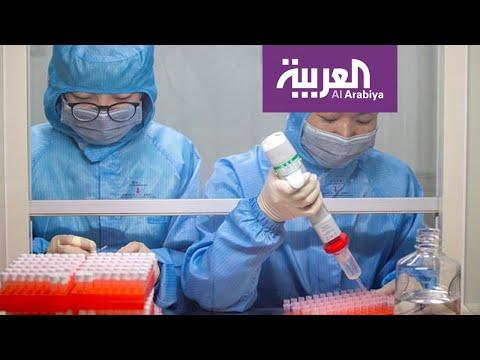 توصل العلماء لتشخيص جديد لفيروس كورونا