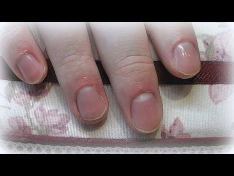 Amorolfin das Mittel von gribka der Nägel