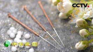 《中华医药》 电针温通扶正气:针灸通电是如何帮助脑梗患者重获健康?20190302 | CCTV中文国际