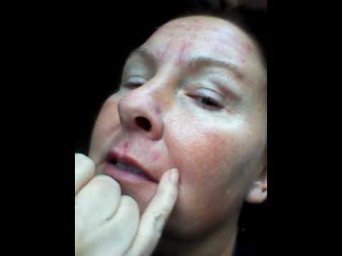 How does a Plexr treatment heal_6 days after treatment