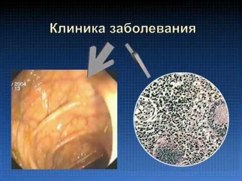 Воспалительные заболеваня толстой кишки 003-1