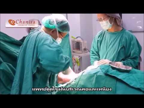Thrombophlebitis และเส้นเลือดขอด