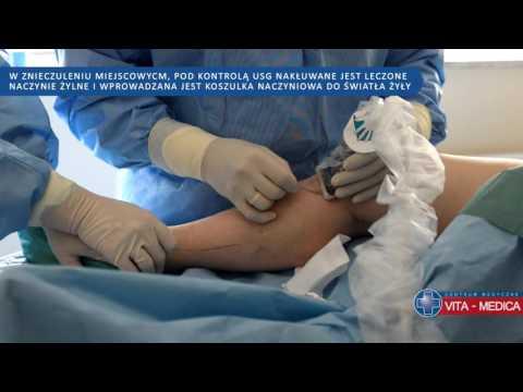 Żylaki miednicy podczas objawów ciąży