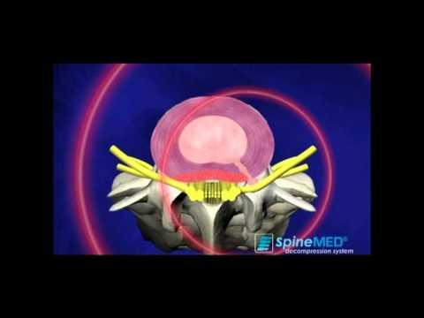 Osteochondrose Bild