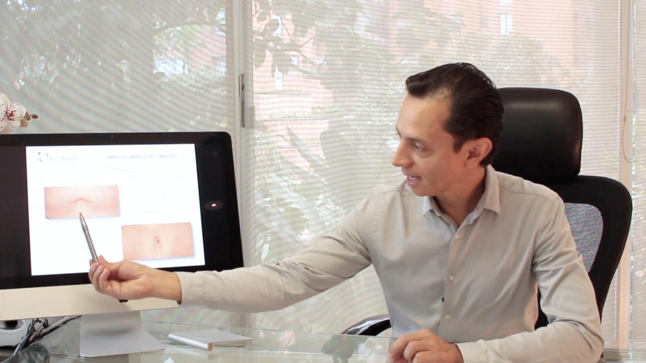 Los 5 objetivos de la Abdominoplastia con el Dr. Edison Osorio