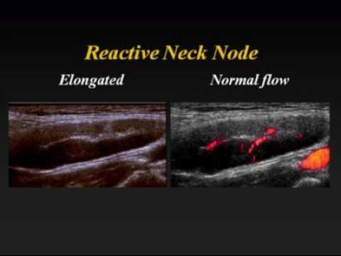 I danni di epatite posteriori
