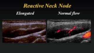 Ultrasound of Cervical Lymph Nodes