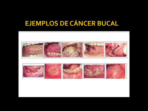 Pancreatic cancer yellow diarrhea