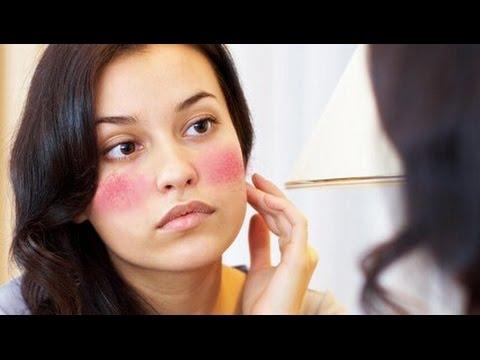 Video cara mengatasi iritasi kulit wajah
