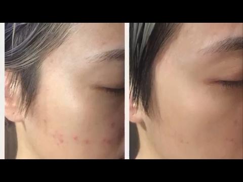 Jak wybielić swoją twarz z węglem aktywowanym