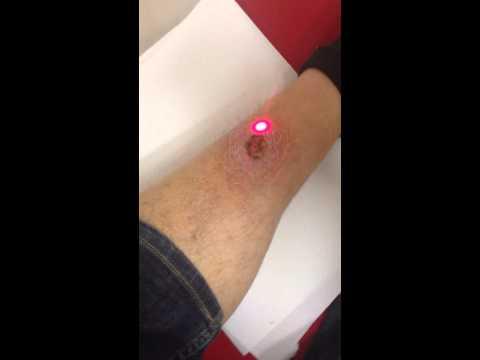 Ibx das System die Verstärkung und die Behandlung der Nägel