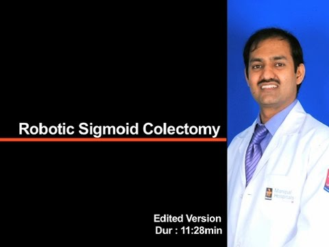 Robotic Sigmoid Colectomy