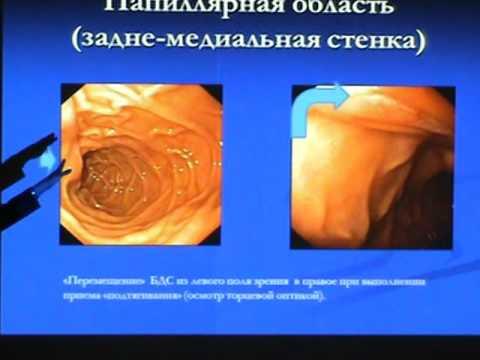 Эндоскопическая анатомия двенадцатиперстной кишки. Т.В.Коваленко, врач-эндоскопист МЦ ЦБ РФ.