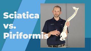 True Sciatica VS Piriformis Syndrome