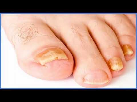Welche Symptome bei gribke auf den Beinen der Nägel