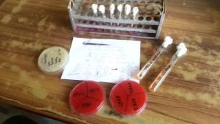 GTT  Germ Tube Test  Mycology
